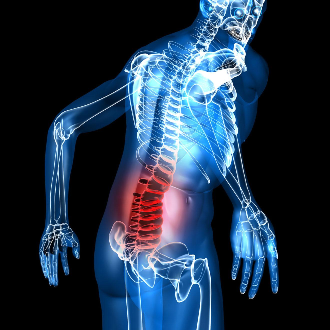 Mal de dos musculaire: tout ce qu'il faut savoir